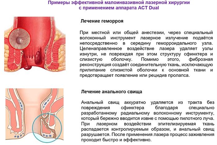 Хроническая анальная трещина  симптомы и лечение